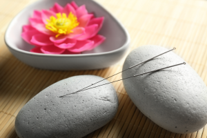 acupuncture-professional-treatment