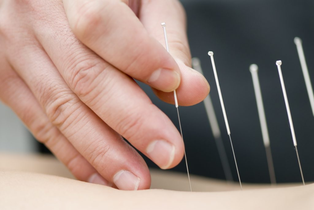 acupuncture-treatment-back